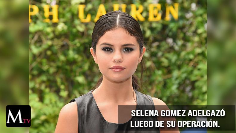 Selena Gomez adelgazó luego de su operación.