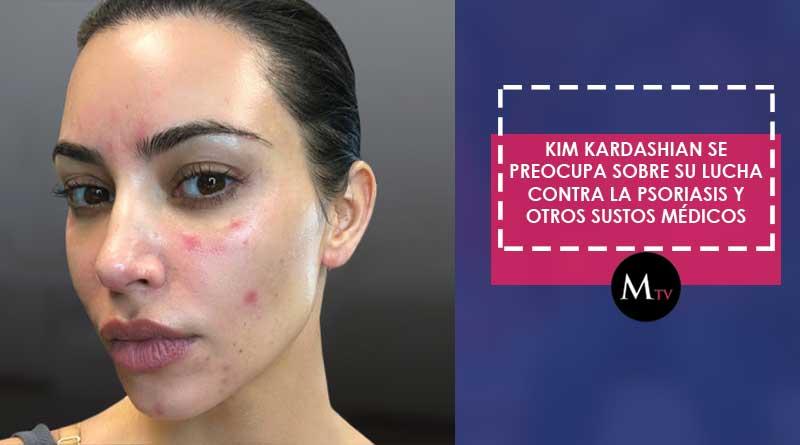 Kim Kardashian se preocupa sobre su lucha contra la psoriasis y otros sustos médicos