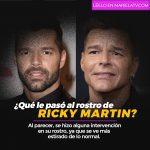 ¿Qué le pasó al rostro de Ricky Martin?